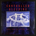 Controlled Bleeding